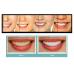 Средство для отбеливания зубов Dr. Whitiss Tooth Whitening System